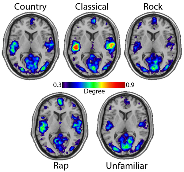 research paper on music and the brain Research paper on music and the brain we are most trusted custom-writing services among students from all over the world since we were founded in 1997.